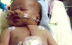 Врачи впервые решились прооперировать сердце двухлетнего ребенка