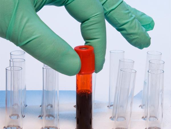 Риск болезней сердца зависит от группы крови