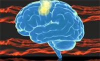 После инсульта мозг не способен управлять мышечной синергией