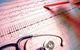 Тюменские кардиологи написали труд о болевом синдроме в грудной клетке