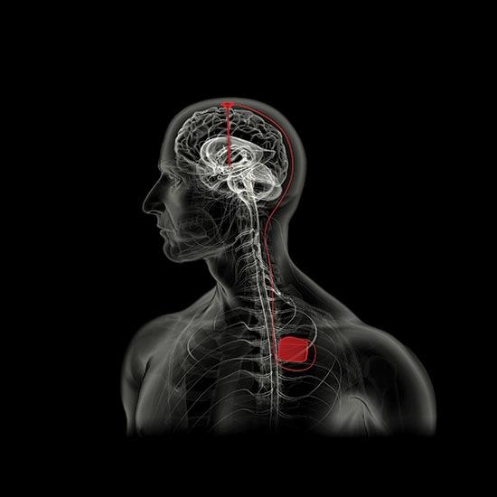 Ученые уверяют, что нашли в голове человека центр удовольствия