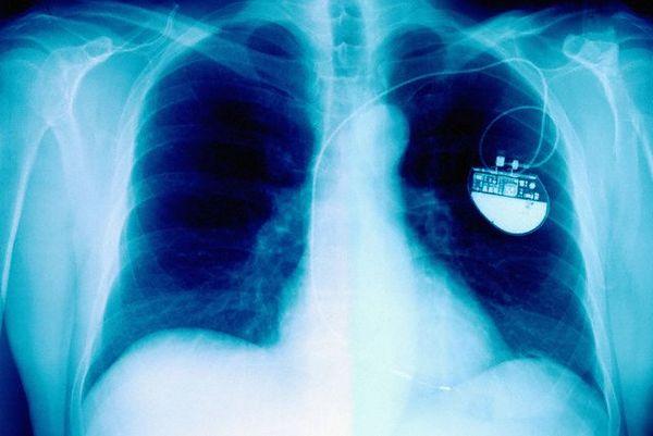 Создан кардиостимулятор миллиметровых размеров, не нуждающийся в собственной батарее