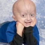 Первое успешное лечение прогерии – редкой детской болезни