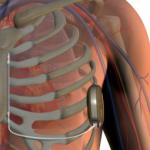 FDA одобрило первый в мире подкожный дефибриллятор