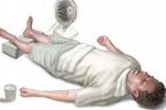 Обморок: причины, симптомы, первая помощь