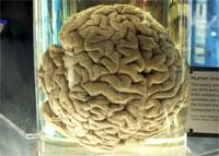 Исследования помогли выяснить, как диета влияет на функции мозга