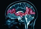 В США одобрено новое лекарство против эпилепсии