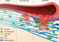 Глэдстоунские ученые идентифицировали ключевой механизм рассеянного склероза