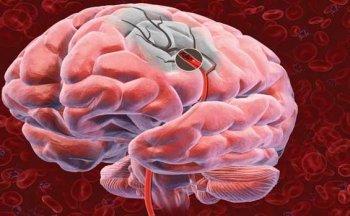 Нейротерапия побеждает инсульт