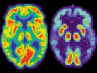 Биомаркеры болезни Альцгеймера проявляются за 20 лет до первых симптомов