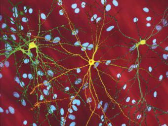 Фактор роста уменьшил гибель нейронов при болезни Хантингтона