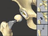Эндопротезирование бедренного сустава повышает риск развития инсульта