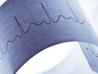 Девятерых итальянских кардиологов заподозрили в экспериментах на больных