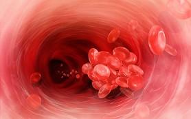 Тяжелые болезни увеличивают риск венозного тромбоза