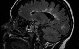 Лекарственное обеспечение больных рассеянным склерозом в Российской Федерации