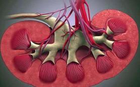 Денервация сосудов почек снижает артериальное давление на долгий срок