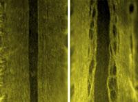 Открыто удивительное действие белка в организме