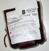 Объемные переливания крови увеличивают риск сердечных приступов для пациентов с анемией