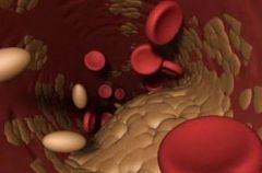 Что могут значить показатели холестерина