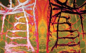 Найдены отвечающие за развитие диафрагмальных мотонейронов гены