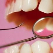 Исследования: противоэпилептические лекарства могут приводить к аномалиям развития челюстей и полости рта