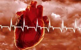 Предынфарктная стенокардия улучшает прогноз инфаркта
