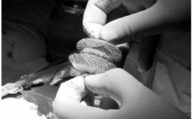Эндоваскулярное лечение не всегда улучшает восстановление после инсульта