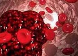 Ученые изучили риск совместного применения антитромботических препаратов при инсульте