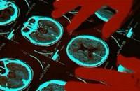 Сканирование мозга предскажет преступное поведение