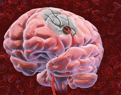 Один из десяти людей переносит инсульт и не знает об этом