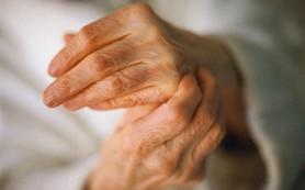 Глюкокортикоиды связаны с повышенным риском тромбоза