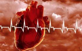 Эплетор в лечении пациентов, перенесших инфаркт миокарда