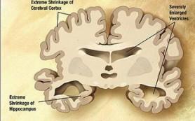 Eli Lilly остановила испытания лекарства от болезни Альцгеймера