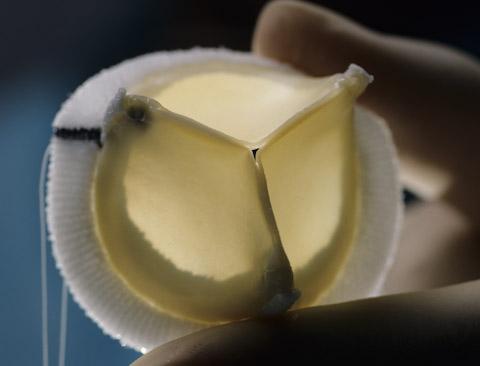 Новый искусственный клапан дает надежду взрослым пациентам с врожденными пороками