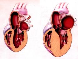 Лекарство от рассеянного склероза помогает при гипертрофии сердца