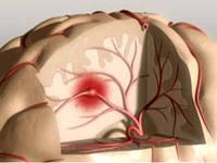 Медики придумали, как защитить мозг от инсультов