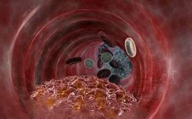 Атеросклероз: пути лечения и профилактика