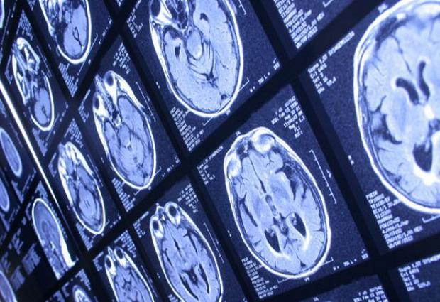 Дислексию можно обнаружить при помощи МРТ-сканирования