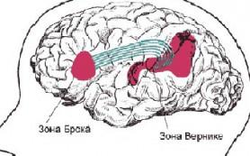 В дислексии обвинили дугообразный пучок