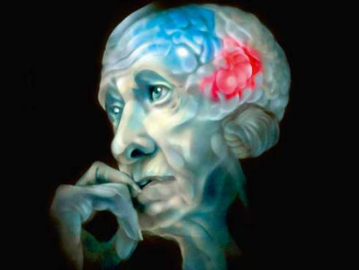 Лишняя медь в организме приводит к болезни Альцгеймера