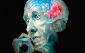 Болезнь Альцгеймера и диабет оказались генетически связаны