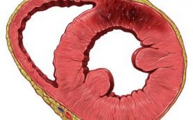 Найден ген, ответственный за развитие инфаркта миокарда
