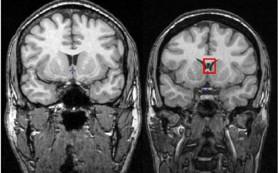 Ненормальность мозга предсказывает хронические боли