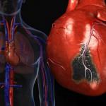 В Луганске хирурги научились лечить осложнения инфаркта миокарда