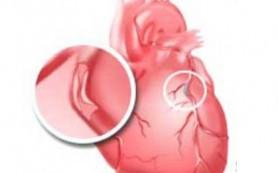Мужчины предрасположены к болезням сердца из-за своего происхождения