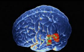 Учеными найдена зона мозга, отвечающая за принятие решений