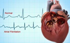 Снижение массы тела благоприятно для течения мерцательной аритмии