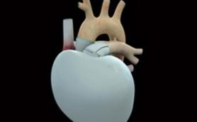 Французы объявили о первой пересадке «космического» искусственного сердца