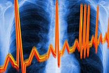 Рост заболеваемости населения планеты фибрилляцией предсердий беспокоит экспертов ВОЗ