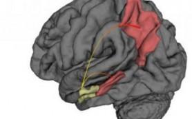 МРТ позволила найти «начало начал» болезни Альцгеймера